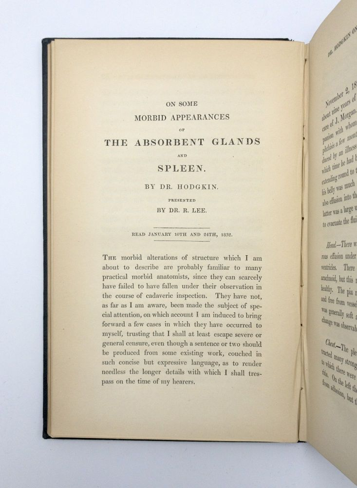 """""""On some morbid appearances of the absorbent glands and spleen"""".; In: Medico-Chirurgical Transactions, Published by the Medical and Chirurgical Society. Thomas HODGKIN."""