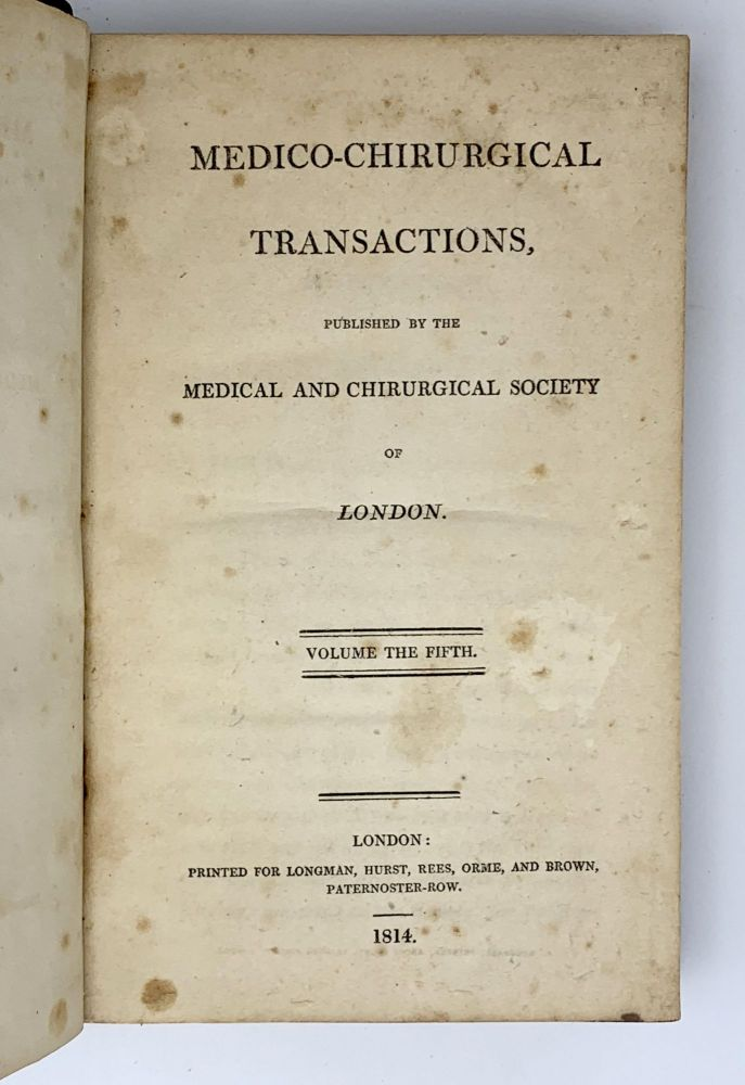"""""""A case of aneurism of the gluteal artery, cured by tying the internal iliac"""".; In: Medico-Chirurgical Transactions. Volume 5. William STEVENS."""
